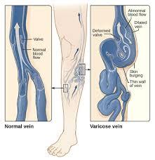 Современная методика лечения венозных патологий